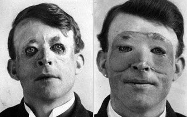 21-Walter-Yeo-uno-de-los-primero-en-someterse-a--una-avanzada-operacion-de-cirujia-plastica-y-trasplante-de-piel-1917