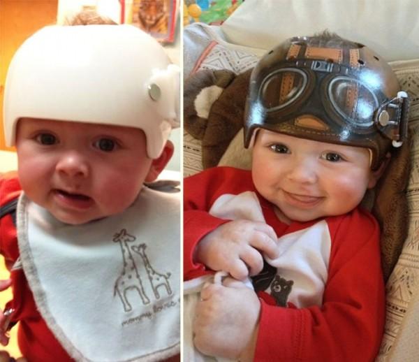 casco-corrector-bebes-pintado-00