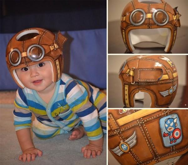 casco-corrector-bebes-pintado-01