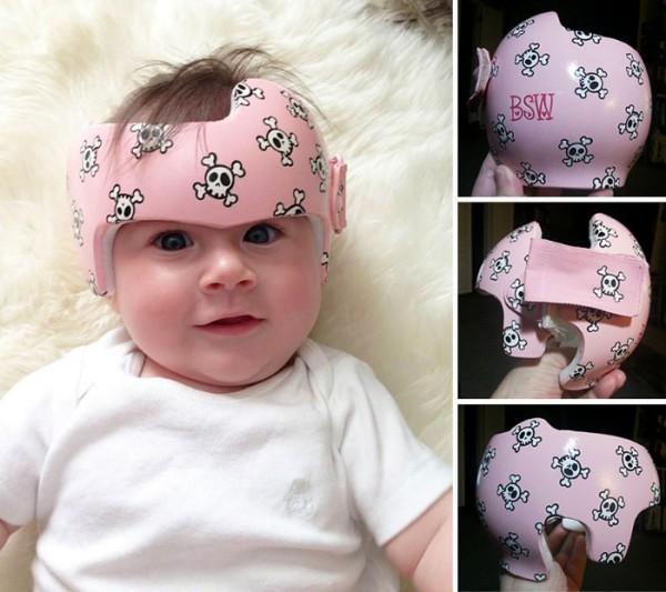 casco-corrector-bebes-pintado-09