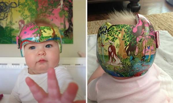 casco-corrector-bebes-pintado-13