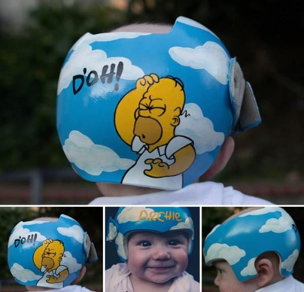 casco-corrector-bebes-pintado-16